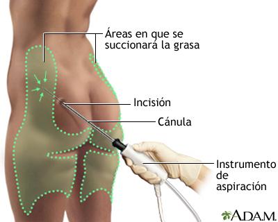 Tratamiento de fisioterapia postliposucción